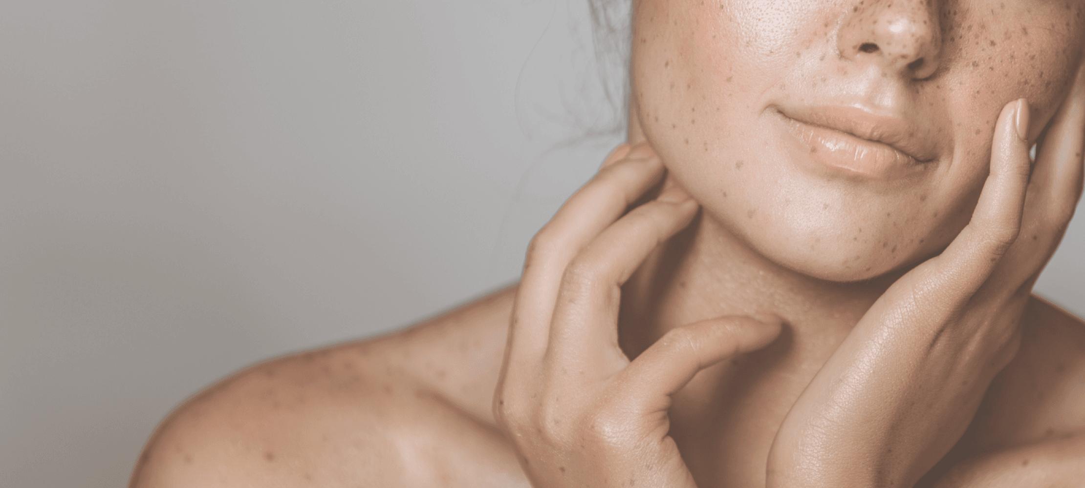 Skin By Lovely Case Study